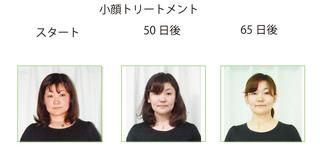 顔比較写真のコピー.jpg